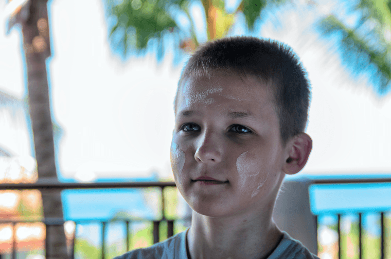 boy with white sunscreen layer on his face